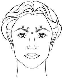 Botox 200 Units - Summary of Product Characteristics (SmPC